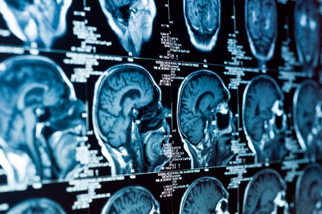 Лечение опухолей головного мозга в Израиле с применением радио хирургических технологий