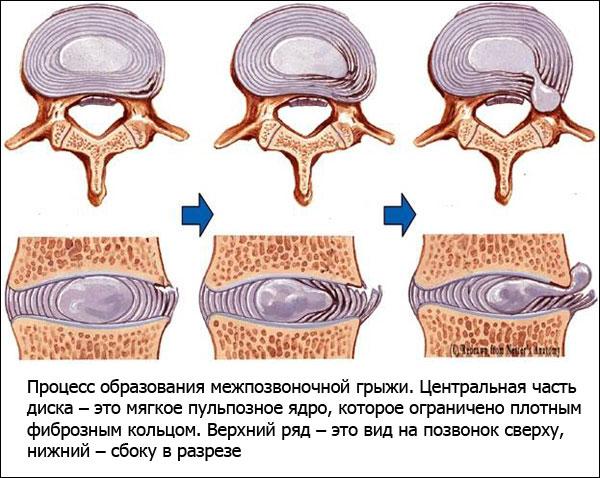 один немногих, оперативное лечение остеохондроза позвоночника просто замечательный, побольше